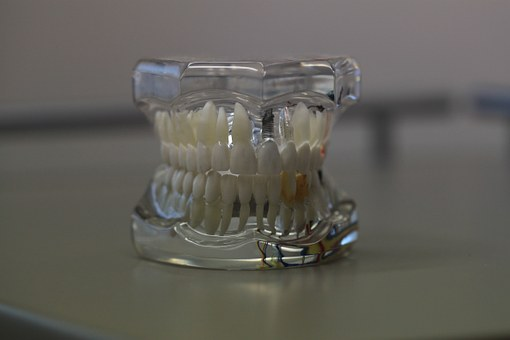 prothesiste dentaire ceramiste dentiste